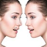 Nose plastic surgery (rhinoplasty)